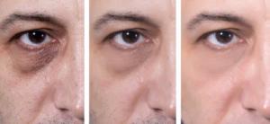 Dermaroller gegen Augenringe vorher nacher vergleich