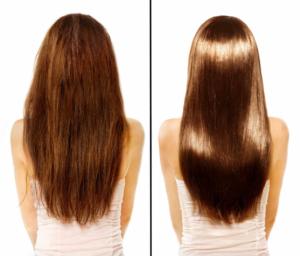 Micro Needling gegen Haarausfall vorher nachher