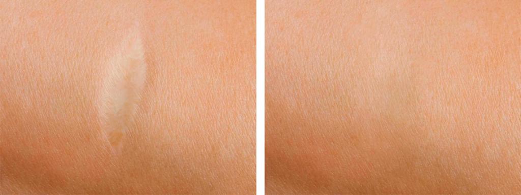 Micro Needling gegen Narben vorher nachher