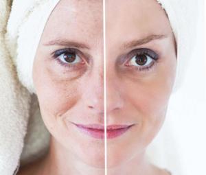 Micro Needling gegen große Poren vorher nacher