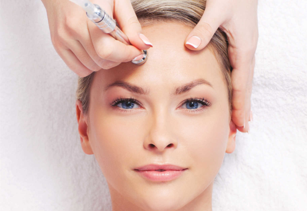Micro Needling mit Radiofrequenz
