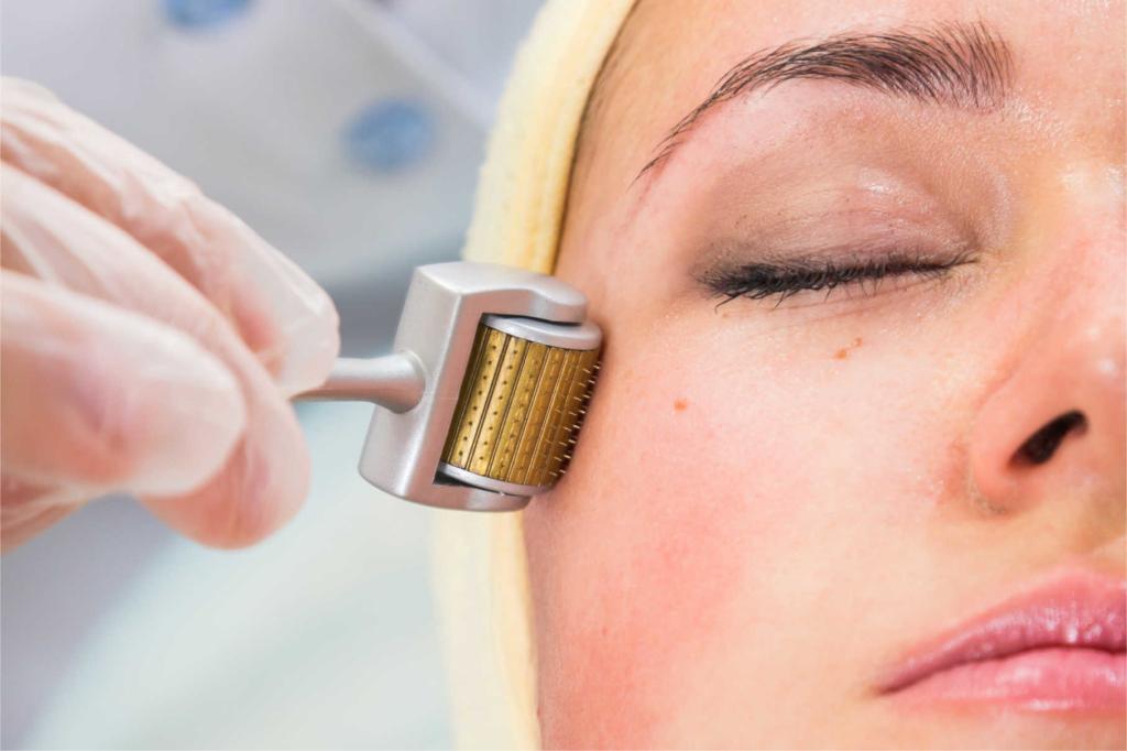 Microneedling Behandlung bei Tränensäcke