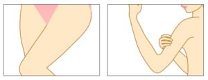 Needling-Anwendung bei Oberarme und Oberschenkel