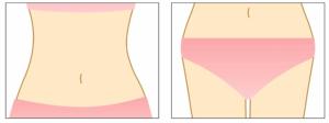 Needling Bauch und Taille
