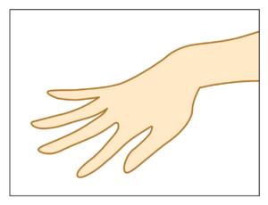 Needling Handrücken