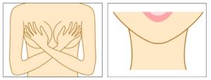 Needling am Dekolleté und Halsbereich