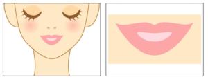 Needling im Gesicht auf Lippen und Mundpartie